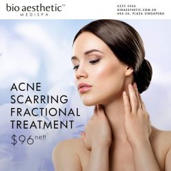 [Bio Aesthetic] Experience the world's most advance and comprehensive scar removal technology. Our Acne Scarring Fractional Treatment uses powerful micro beams