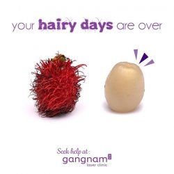 [GANGNAM LASER CLINIC] Unwanted hair can be a bane to women and we can solve that for you!