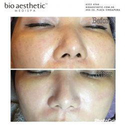 [Bio Aesthetic] Experience Instant whitening and blemish free results by BB Glow Treatment in just 1 session!