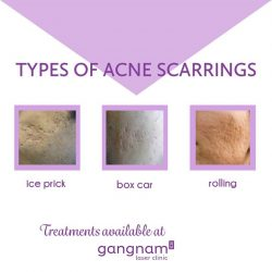 [GANGNAM LASER CLINIC] Acne scarring can mare confidence.