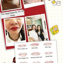 [THE BEST BEAUTY CENTRE] The best beauty BB lips enhancement two to go will get 20%discount!