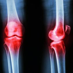 [Core Concepts - Physiotherapy Centre] New studies suggest that steroid injections may offer no benefit to those with knee osteoarthritis