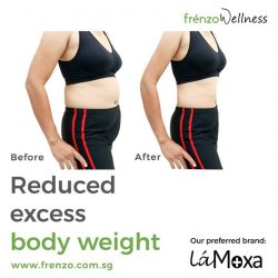 [Frenzo Spa & Wellness] Want to lose the excess body weight?