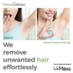 [Frenzo Spa & Wellness] Been wanting to remove unwanted hair for good?
