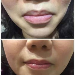[Brow Art Studio] Natural Lips embroidery that you can't tell the difference from real done by our master artist Jenny.