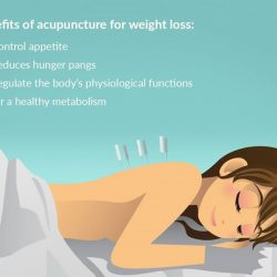 [Aimin Acupuncture & Weight Loss Centre] Did you know that using acupuncture for weight loss is a treatment with more than 5000+ years of history?